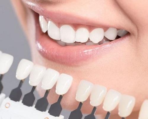 قالب های دندانپزشکی