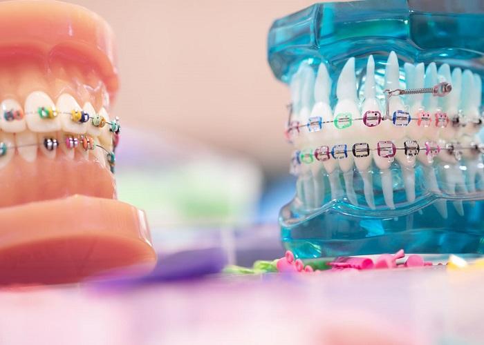 روش های ارتودنسی دندان