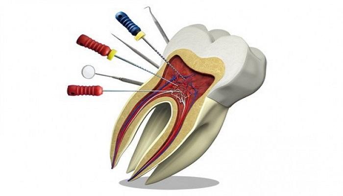 درمان ریشه در دندانپزشکی