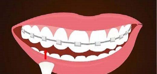 مشکلات و درمان دندان نیش