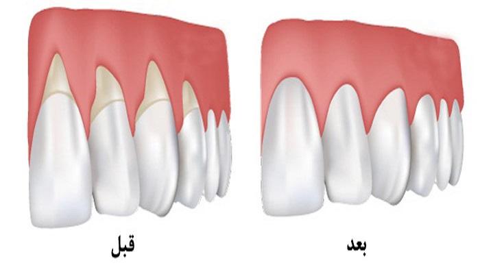 درمان لثه در دندانپزشکی