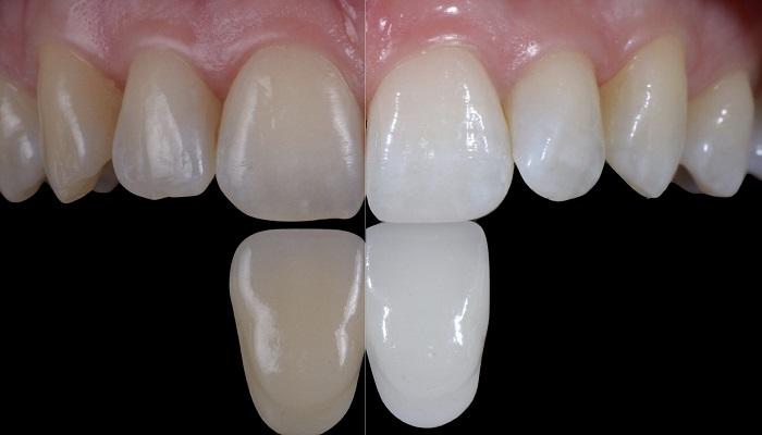 بلیچینگ یا سفیدسازی دندان در دندانپزشکی