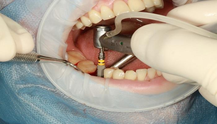 ایمپلنت یا کاشت دندان در دندانپزشکی