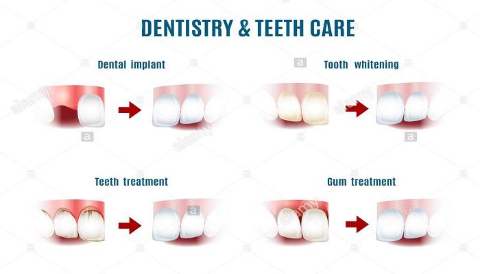 روش های خدمات دندانپزشکی