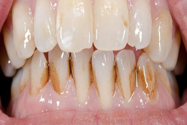 پوسیدگی و ترمیم دندان