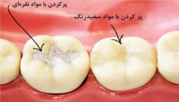 ترمیم دندان در دندانپزشکی
