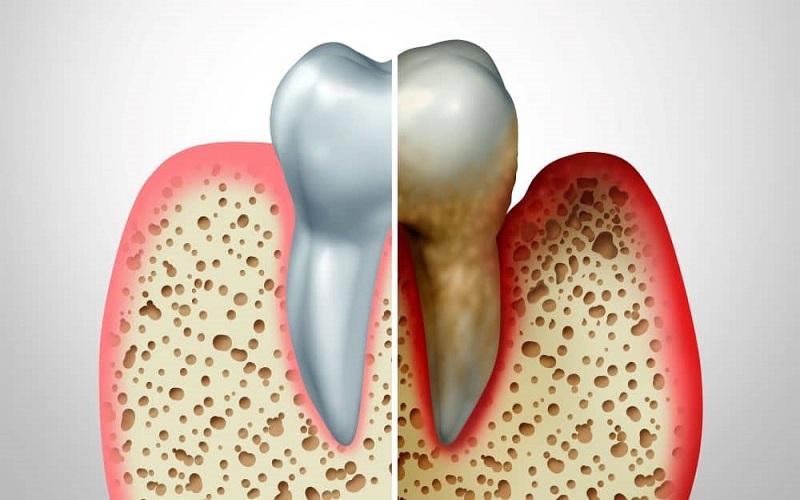 ارتباط بیماریهای قلب و دندان
